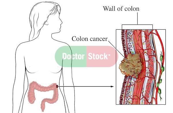 Bowel wall anatomy