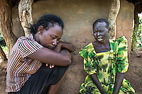 "N. Uganda, Kitgum District. Jean, a PCAF social worker, listens to her patient as ""Christina,"" 52, describes the challenges & loneliness of losing her family during the war. She suffers from epilepsy and was badly burned when having a seizure. She fell in a kitchen fire, burning her face and fusing her fingers and is now afraid to be on her own. Her children rarely visit. Her neighbor helps her with food or getting her medication from the clinic. She is depressed and suicidal."