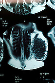 An MRI scan showing a tumour on the side of a patient's chest. Royalty Free