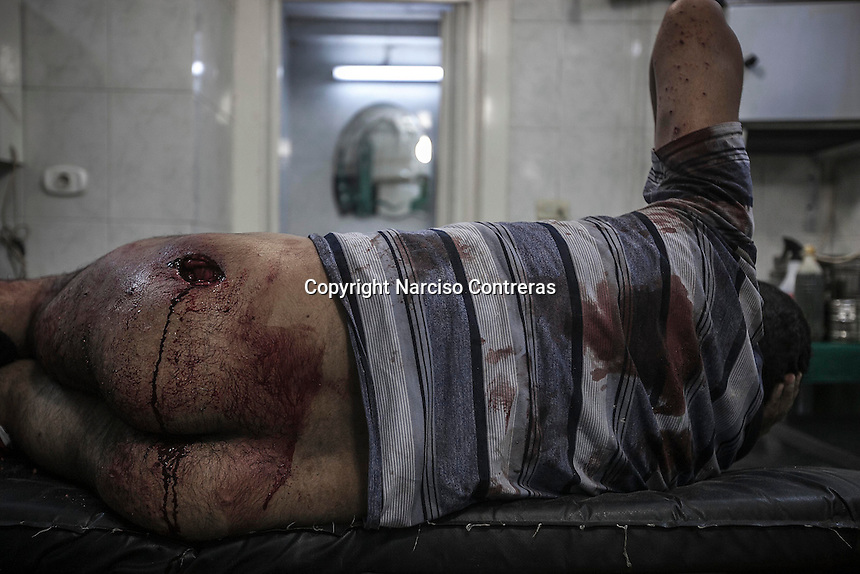 A Syrian civilian lies down on a trolley as he gets medical treatment in a Hospital at the northeast of Aleppo City. The man was shot during a street fighting between rebels and Assad's army.