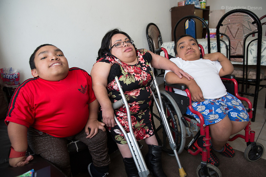 From left to right: Alfredo Ivan Torres Gil, 18 - Brenda Eduardo Torres, 32  and Joaquin Eduardo Torres Gil, 14 pictured at their home in Mexico City, Mexico on February 16, 2017. The three siblings have been diagnosed with Morquio syndrome. Morquio syndrome is a rare inherited birth defect that is estimated to occur in one of every 200,000 births. The disease may not be visible at birth; symptoms usually begin between ages 1 and 3. Morquio syndrome is a progressive disease, meaning symptoms get worse as a child grows. Photo credit: Bénédicte Desrus