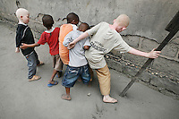 Two albino children play with other children out in the street in Dar Es Salaam. Discrimination against albinos is a serious problem throughout sub-Saharan Africa, but recently in Tanzania albinos have been killed and mutilated, victims of a growing criminal trade in albino body parts fuelled by superstition and greed. Limbs, skin, hair, genitals and blood are believed by witch doctors to bring good luck, and are sold to clients for large sums of money, carrying with them the promise of instant wealth.
