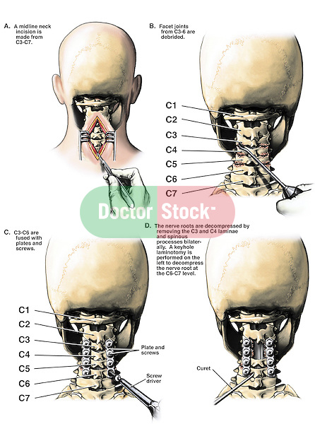 Cervical Laminectomy With Fusion Cervical Laminectomies