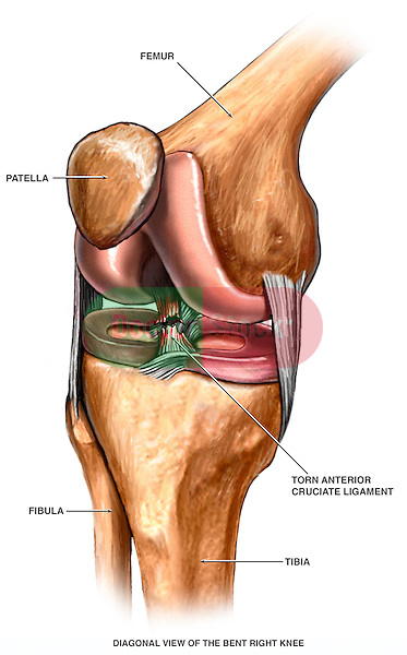Anterior Cruciate Ligament Injury Doctor Stock