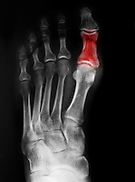 Foot x-ray of a 52 year old man with a fracture of his great toe, highlighted in color