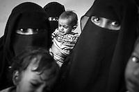 Yemen's Hunger Crisis