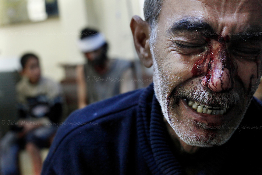 Kamal, the father of an 8-year-old girl who was fatally wounded along with his son Hamed (sitting at left on background), cries while being treated in a local hospital in a rebel-controlled area of Aleppo. The family was wounded by the machine gun of a regime jet at the Karm Al-Aser neighborhood of eastern Aleppo as the skies of this northern city were again filled with the sound of aerial bombing and artillery fire  as combat resumed following a U.N. negotiated truce (which was not respected by either side). Regime snipers inflicted heavy casualties on Free Syria Army forces as both sides launched attacks on each other. ..© AFP/Javier Manzano............................