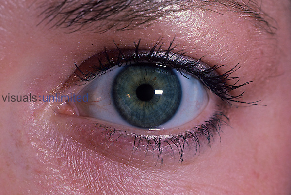 Human eye in the light, with a small pupil....