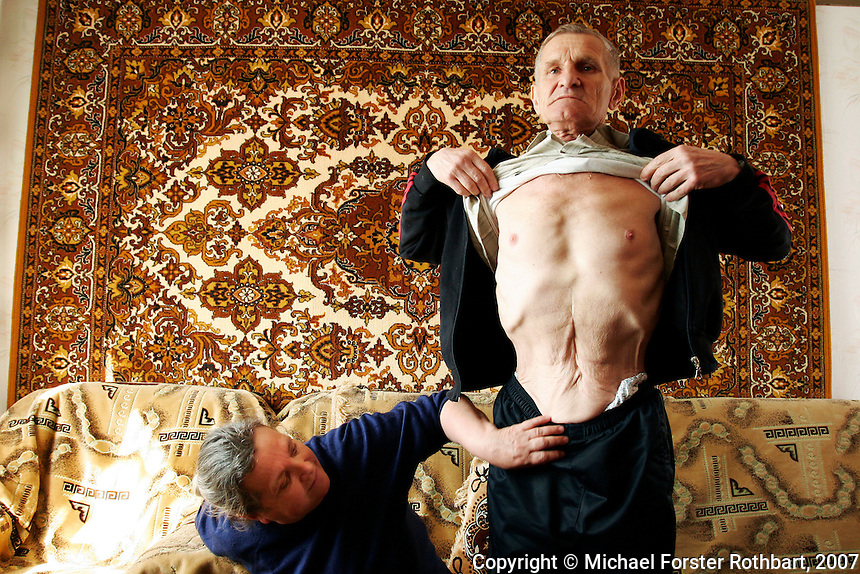 """Photo title:.Viktor Gaidak shows his scar..Caption:.Viktor and Lydia Gaidak sit in their apartment in Desnyanskiy district at the outskirts of Kyiv. Viktor Gaidak worked for 24 years as an engineer at the Chernobyl plant, including 9 years after the 1986 accident. In 2004 he had surgery for colon cancer...Today, nearly half the 49,360 evacuees from Pripyat live in Troeshchina, a new neighborhood at the edge of Kyiv, where they face health problems, unemployment, crowded apartments and insufficient government support...Quote: .""""When I was sick with cancer, we sold our car to pay for the surgery. We sold our TV, we sold our refrigerator, jewelry, everything we could. Now my wife Lydia has cancer and there's nothing left to sell."""".-- Viktor Gaidak, Chernobyl engineer.-------------------.This photograph is part of Michael Forster Rothbart's After Chernobyl documentary photography project..© Michael Forster Rothbart 2007-2010..www.afterchernobyl.com.www.mfrphoto.com o 607-267-4893 o 347-722-0479.20 Gardner Place, #59, Oneonta, NY 13820.86 Three Mile Pond Rd, Vassalboro, ME 04989.info@mfrphoto.com.Photo by: Michael Forster Rothbart.Date:  4/2007    File#:  Canon 20D digital camera frame 4662"""