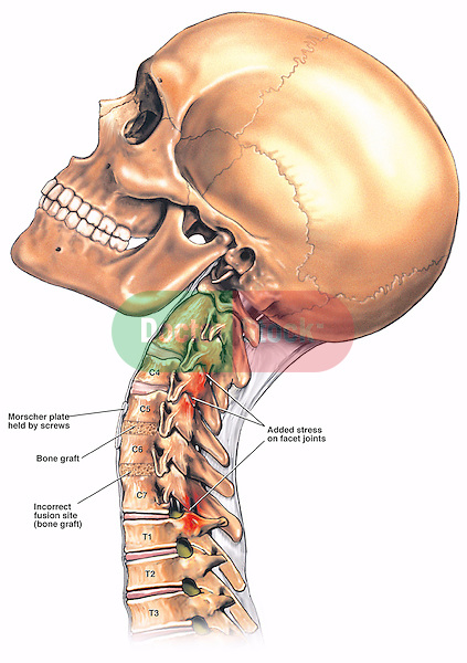 What is involved in spinal fusion surgery?