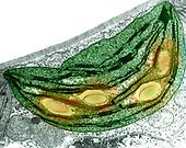 Chloroplast.  ,Ceanothus,  TEM X35,000