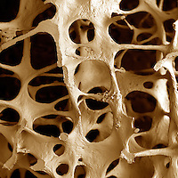 Osteoporosis from an 89-year old female. Osteoporosis is a disease in which bones become extremely porous. They are more easily fractured and also heal more slowly. Osteoporosis occurs more often in women, especially following menopause. SEM