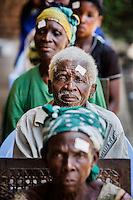 Patients wait for their operations to remove cataracts. The white sticker indicates which eye is to undergo the procedure.  <br /> <br /> From his base in Mbuji Mayi Hungarian ophthalmologist Friar Richard Hardi and his team travelled deep into the Congolese rainforest, by 4x4 and canoe, to treat people in isolated communities most of whom have never seen an ophthalmologist. At a small village called Pania they established a temporary field hospital and over the next three days made hundreds of consultations. Although both conditions are preventable, many of the patients they saw had Glaucoma or River Blindness (onchocerciasis) that had permanently damaged their eyesight. However, patients with cataracts, a clouding of the eye's lens, who were suitable for treatment were booked for an operation. For two days the team carried out the ten minute procedure on one patient after another. The surgery involves making a 2.2mm incision into the remove the damaged lens that is then replaced by an artificial one. Doctor Hardi is one of the few people willing to make such a journey but is inspired to do so by his faith and, as he says: 'Here I feel that I can really make a difference in people's lives'. /Felix Features