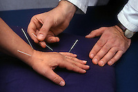Agopuntura. Acupuncture....