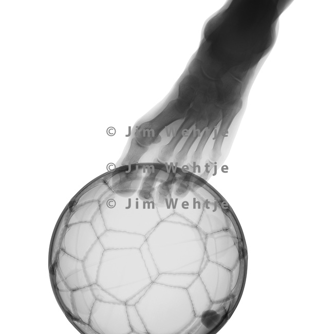 X-ray image of a foot and soccer ball (black on white) by Jim Wehtje, specialist in x-ray art and design images.