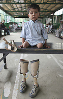 Child sitting on a table in an orthopedic center in Afghanistan with his crutches and artificial legs ready to be attached