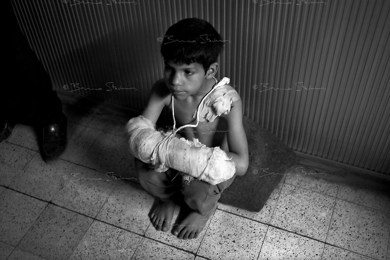 Hilla, Iraq, April 2, 2003.Hilla Hospital; an unidentified victim of a US air raid which left more than 50 dead and 400 wounded among the local civilian population.
