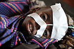 A feeding tube helps a malnourished child hang on to life in the stabilization ward of the Ifo Camp Hospital in the Dadaab refugee complex in northeastern Kenya.