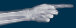 X-ray image of a pointing hand (color on blue) by Jim Wehtje, specialist in x-ray art and design images.