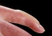 Blister on finger
