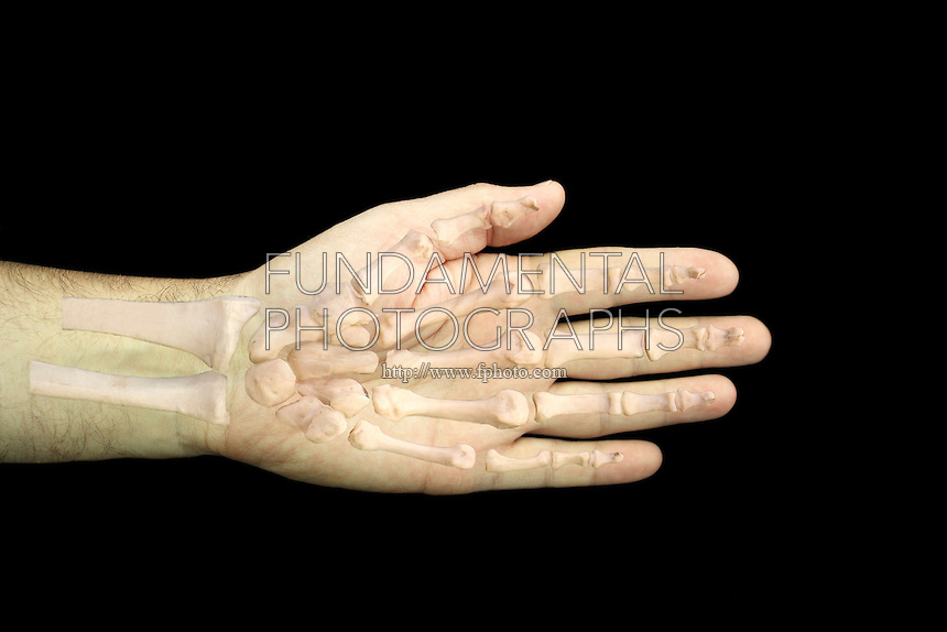 SKELETAL STRUCTURES<br /> Human Hand<br /> Photomontage showing a hand with its skeletal structure superimposed.   There are 27 bones of the hand, 5 cylindrical metacarpal bones from the carpals (wrist bones) to the knuckles and 14 phalanges or finger bones.