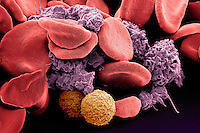 Human red and white blood cells and platelets. SEM, REM, x1200 based on 35mm