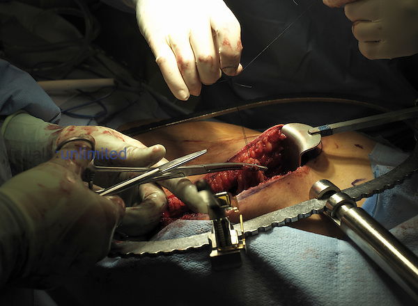 Surgeon ligating the omentum, with a Bookwalter self-retaining retractor in place