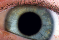 Close-up of dilated eye