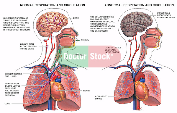 Lungs diagram of a smoker after smoking cancer anatomy and heart blood in lungs lungs diagram of a smoker after smoking cancer anatomy and heart drawing images after smoking wee of a weed smoker ccuart Choice Image