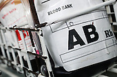 A blood bag containing group AB blood...Blood group AB contains both A an B antigens and has no Antibodies present. Royalty Free
