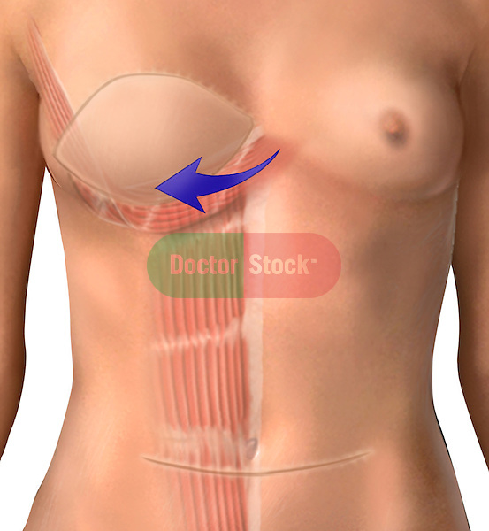 Breast Reconstruction Following Mastectomy; depicts the torso of a female following a mastectomy An arrow indicates the direction the skin flap and pectoral musculature is shifted in breast reconstruction