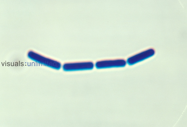 A short chain of Bacillus Bacteria. LM
