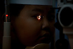 Dr. James Brandt, of Sacramento, examines 11-year-old Hung Nguyen's eye after performing glaucoma surgery to reduce the pressure at the Ho Chi Minh City Eye Hospital on Friday, April 18, 2008. Kevin German /  kevin@kevingerman.com..ORBIS Flying Eye Hospital brought doctors, nurses and specialists from all over the world to Ho Chi Minh City, Vietnam from April 7-18, 2008.  The ORBIS program contributed to the efforts of Ho Chi Minh City Eye Hospital in fighting avoidable blindness by educating local ophthalmologists to diagnose and manage pediatric blindness, retinal disease, oculoplastics, and blindness due to glaucoma.
