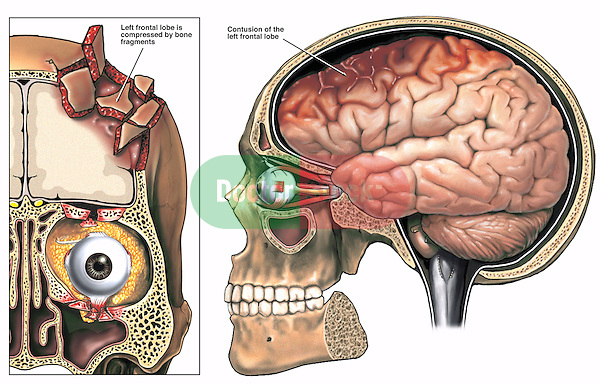 Skull Fractures - Brain Damage. This exhibit reveals two images describing post-accident brain injuries to the left frontal region of the skull with damage and injury to the underlying brain structures.