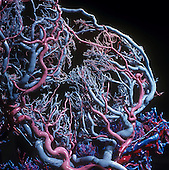 Resin cast of the human placental blood vessels which perfuse the placenta. Arteries are colored red and veins blue. Within the placenta, substances from the mother such as nutrients and oxygen pass to the fetus and waste exchange occurs. Triplets