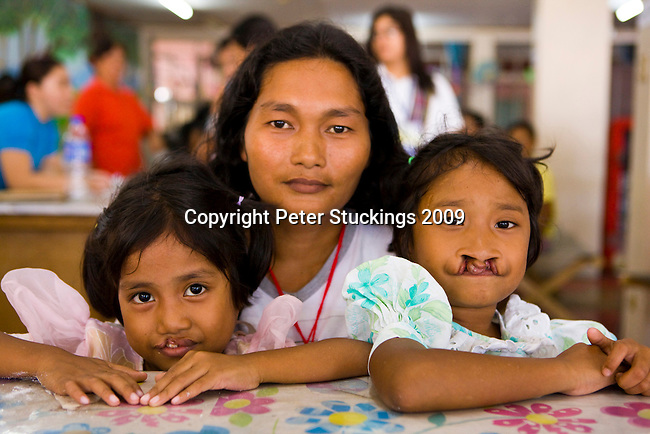 Operation Smile in Cebu, Philippines