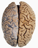 Human brain from above showing the two cerebral hemispheres. The arachnoid membrane and the underlying blood vessels have been left intact over the left cerebral hemisphere but the right hemisphere is exposed. In life, the arachnoid membrane is raised above the brain surface by the cerebrospinal fluid. The brain contains more than 300 billion neurons and is composed mainly of gray matter which originate and process nerve impulses and white matter which transmit the impulses.