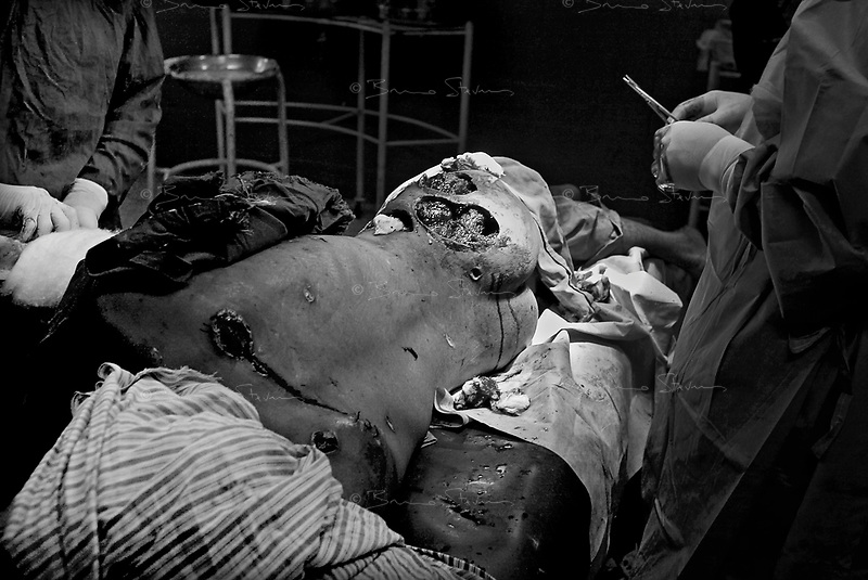 Hilla, Iraq, April 2, 2003.Hilla Hospital, emergency surgeons operate on Nawaf Jaber, 30, critically injured in the back and in the abdomen by a US missile near his home.