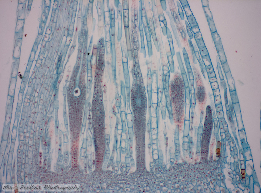 Cross section showing the archegonia of Mnium sp., a moss.  Visible to the left is an egg in an archegonium with an easily visible neck canal.