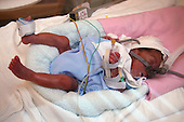 Premature baby boy in an incubator in the neonatal unit.  MR