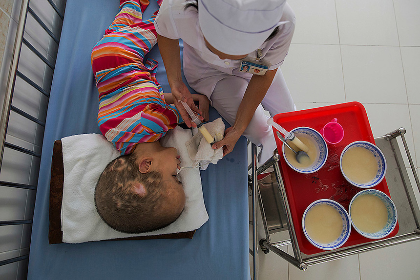 A defoliant Agent Orange victim Pham Thi Phuong Khanh is fed by a hospital staff at the Peace Village in Tu Du hospital in Ho Chi Minh City April 14, 2015. Both parents of Pham Thi Phuong Khanh were exposed to the Agent Orange used during the Vietnam War. According to the head of the Peace Village, more than two thirds of its over 60 patients are from areas that were heavily sprayed by the Agent Orange during the Vietnam War and their health conditions are linked to the use of the highly toxic defoliant.   REUTERS/Damir Sagolj