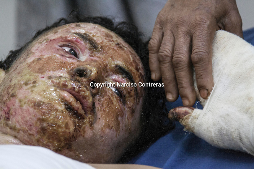 July 03, 2015 - Sana'a, Yemen: Mohammed Saulan Annuar, 17 years-old peasant and student, lays on a bed in Junhuria Hospital as he is treaten from his wounds caused by one bomb dropped by a fighter jet from the Saudi-led coalition in Sa'dah province last June 17th. 13 civilians were killed during the attack while Mohammed survived with 70% of his body severely burned. (Photo/Narciso Contreras)
