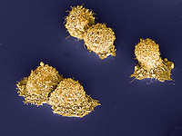 Human breast cancer cells. SEM X1700 at 4 x 5 inches