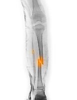 Lower leg x-ray of a 7 year old boy who fractured his tibia and fibula. This is the pre-operative x-ray with the leg in a splint
