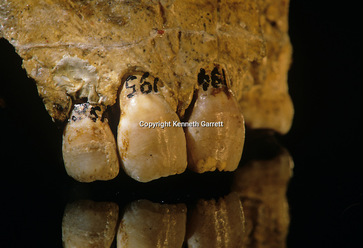 Neandertal; Neanderthal; Human Evolution;  Croatia, 30,000-80,000, interbreeding with humans, Krapina Cave, Vindiya cave, Jacob Radovcic, Fred Smith, cannibalism