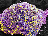 HIV infected cell. SEM