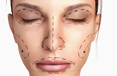 An image of a female patient undergoing a face lift (rhytidectomy). Royalty Free