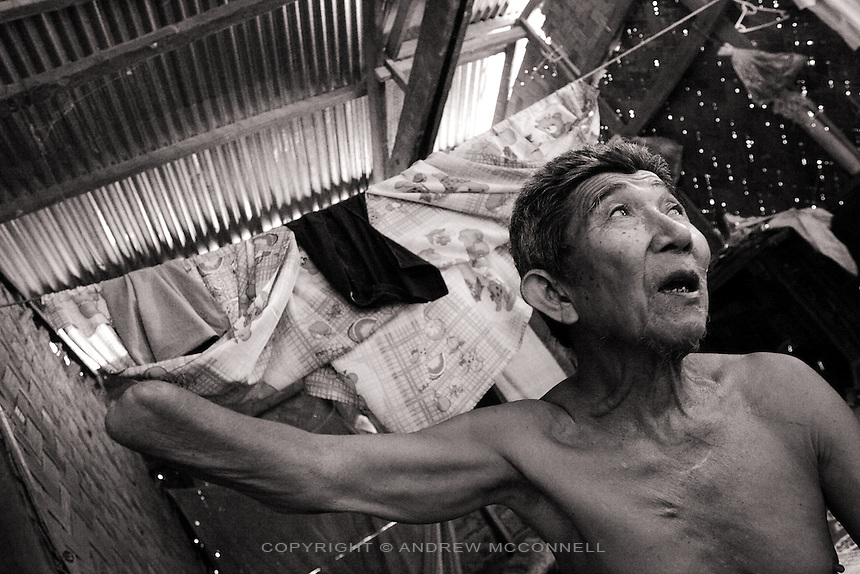 78 year old Pong from Houm Sand village on the Ho Chi Minh trail lost part of his right arm during an American bombing mission in 1970.
