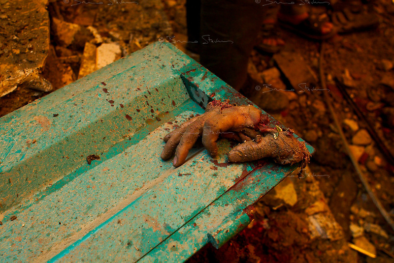 Baghdad, Iraq, March 26, 2003.A victim severed hand after two US bombs fell without apparent reason in Cha'ab avenue, a busy street on the edge of Saddam City, one of the poorest neighbourhood in Baghdad.
