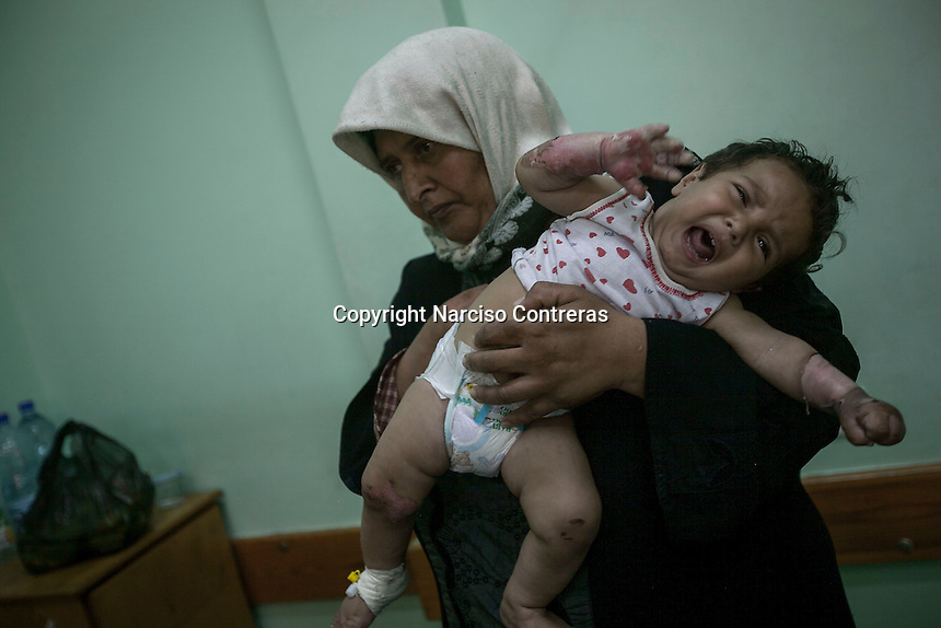 "In this Saturday, Aug. 16, 2014 photo, a 10 months-old Palestinian little child cries as he arrives to the Al-Shifa hospital with his mother to treat his wounds after he was burnt when an Israeli artillery shell targeted the next door house and the fire extended to his family house during the ""Protective Edge"" military operation in Gaza Strip. (Photo/Narciso Contreras)"